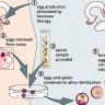 Etapas do processo de fertilização in vitro